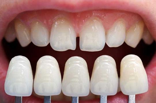 carillas dentales esteticas en tijuana
