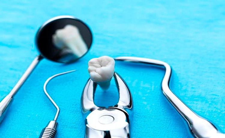 extracciones-dentales-en-tijuana