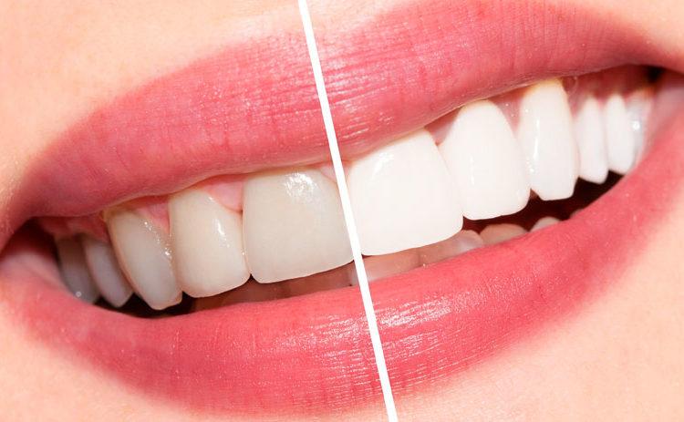 foto-de-limpieza-dental-en-tijuana