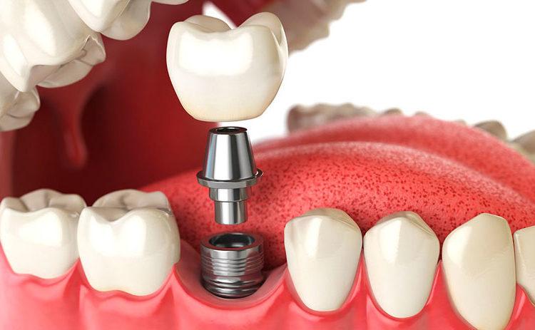 implantes-dentales-en-tijuana