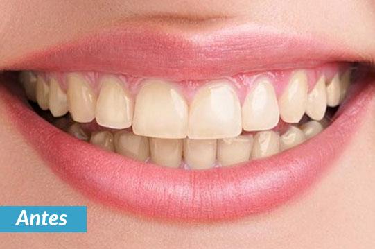 tratamiento de blanqueamiento dental en tijuana