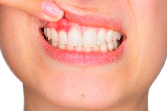 tratamientos periodontales en tijuana